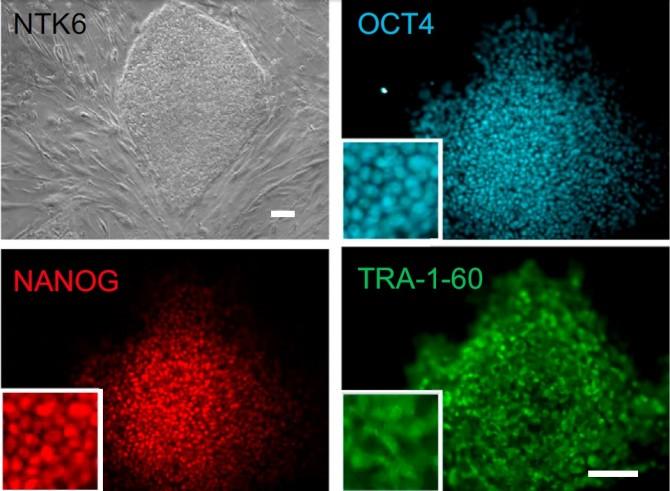 차의과대 연구진은 체세포를 복제해 만든 배아줄기세포(왼쪽 위)에서 만능성을 확인할 수 있는 마커(OCT4, NANOg, TRA-1-60)들이 정상적으로 발현한다는 사실을 통해 모든 세포와 조직으로 분화할 수 있는 줄기세포라는 사실을 확인했다. - 차병원 그룹 제공